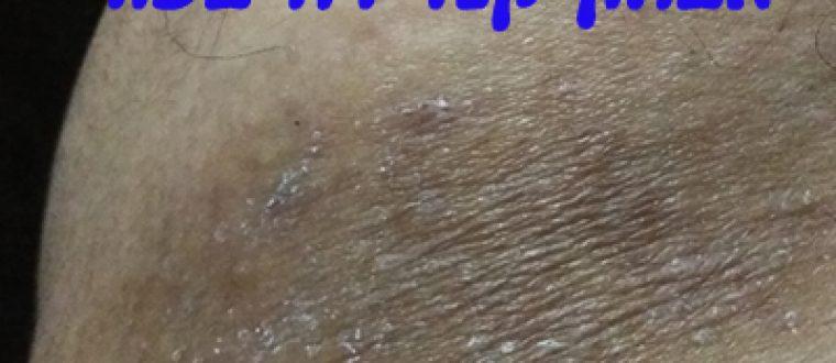 אבחון קנדידה בעור