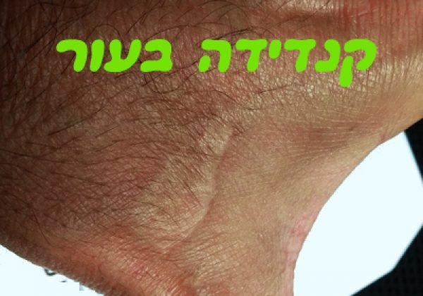 קנדידה בעור